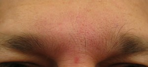 Botox Cosmetic Frown Lines - After