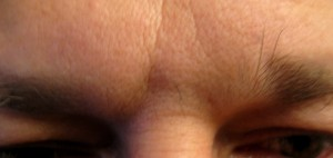 Botox Cosmetic Frown Lines - Before