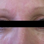 Correction of Under Eye Fat Pads with Radiesse