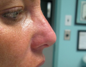 Non-Surgical Nose Reshaping Before