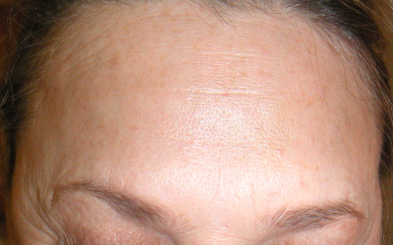 Before and After Gallery: Botox & Radiesse by Sara Ribak : Rx Skin