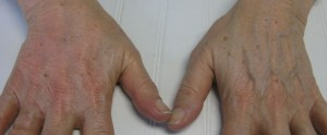 After and Before Treatment with Radiesse for Protruding Veins