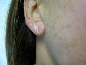Correction of Thinning Earlobe with Radiesse Treatment