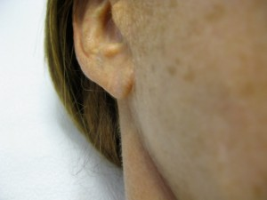 Thinning Earlobe before Radiesse Treatment