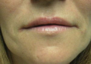 Full  Lips with Youthful Corners Post Juvederm Treatment
