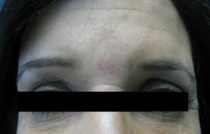 Correction of Deep Forehead Wrinkles Post Botox Treatment