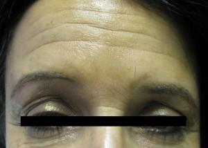 Deep Forehead Wrinkles Before Botox Treatment