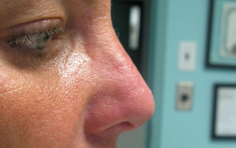 Before And After Gallery Botox Amp Radiesse By Sara Ribak